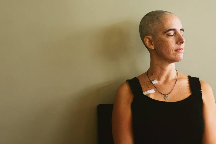 Lauren Corduck shortly after being diagnosed with ovarian cancer that developed because she inherited a mutation in her BRCA1 gene. Lauren preemptively had her head shaved prior to her hair falling out due to chemotherapy treatment. (Photo: Cara Soulia)